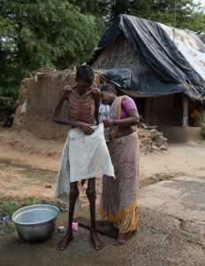 Village man suffering from tuberculosis being washed by his wife, at dusk.